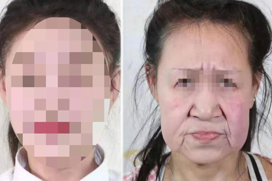 Ärzte operieren 15-Jährige, die wie Oma aussah: So sieht sie jetzt aus