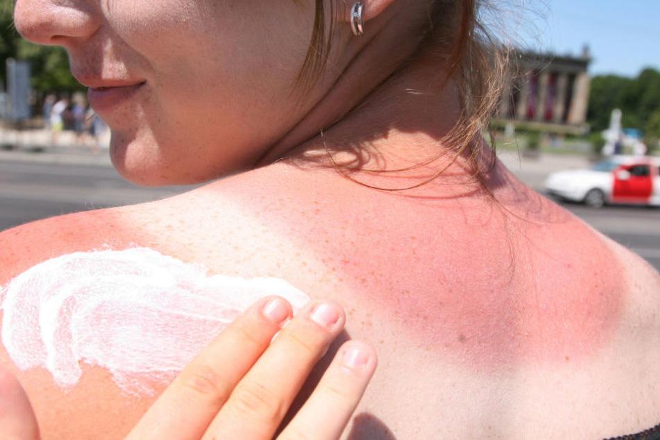 Ein Sonnenbrand kann äußerst schmerzhaft sein. (Symbolbild)