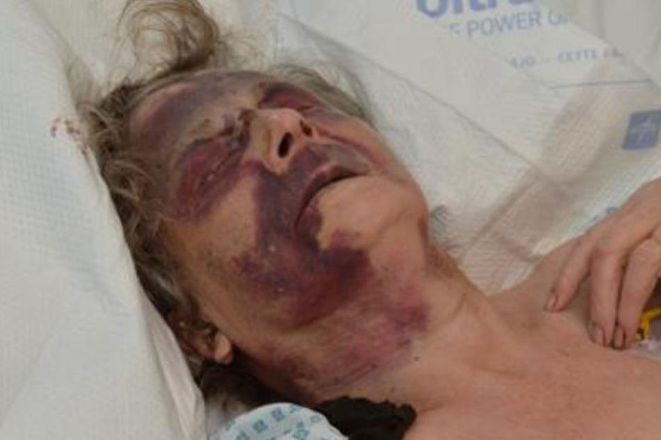 Iris Warner kämpfte im Krankenhaus um ihr Leben. Inzwischen geht es der 90 Jahre alten Frau etwas besser.