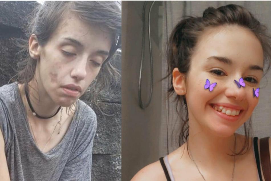 Links: Amber in einem völlig zerstörten Zustand. Rechts zeigt sie, wie glücklich sie heute ist, am Leben und clean zu sein.