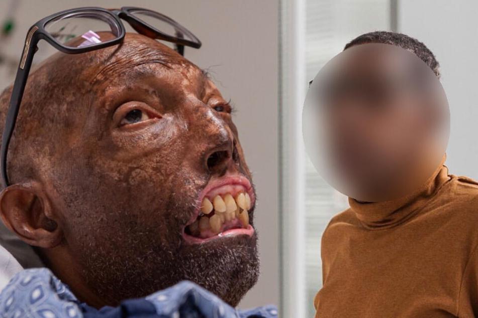 Gesicht erfolgreich transplantiert: So sieht dieser Mann heute aus