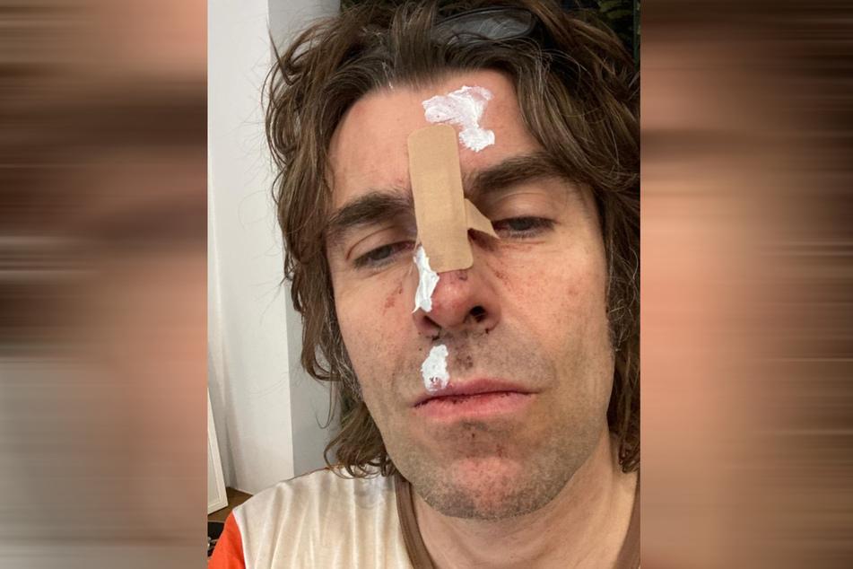 Gallagher wurde bei dem Sturz offenbar heftig erwischt.