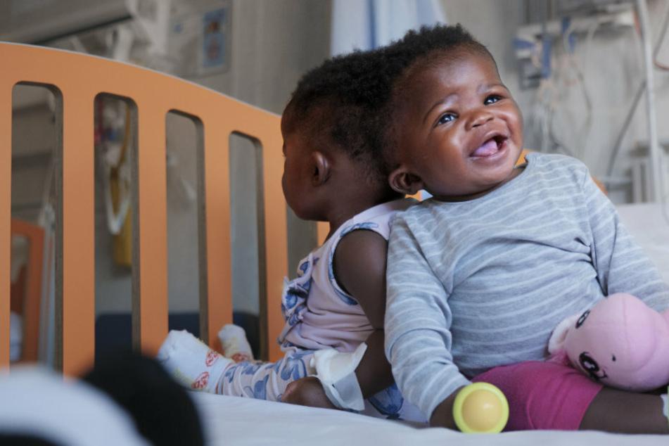 Am Hinterkopf zusammengewachsen: Siamesische Zwillinge getrennt