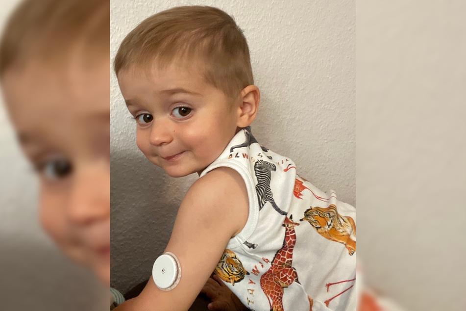 Misst permanent den Blutzucker: Der kleine Daniel trägt einen Sensor am linken Oberarm.
