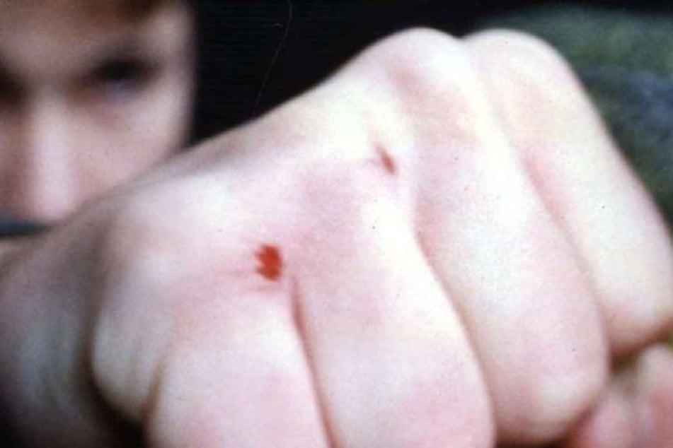 Ein Mann schlug einem 30-Jährigen mit der Faust ins Gesicht. (Symbolbild)