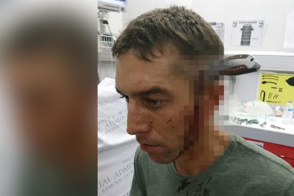 Shaun Wayne fragte trotz Messer im Kopf ganz höflich nach einem Arzt.