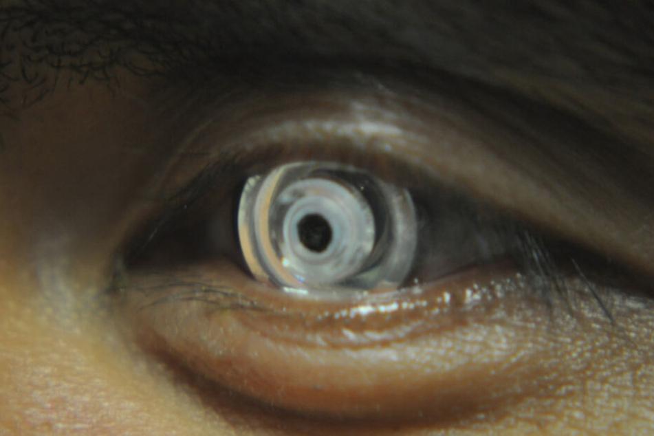 Die Hightech-Kontaktlinse im Auge. Durch Augenbewegung lässt sie sich steuern.
