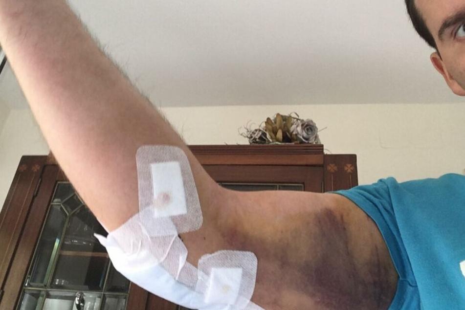 Ali durfte das Krankenhaus mittlerweile wieder verlassen - Schmerzen hat er immer noch.