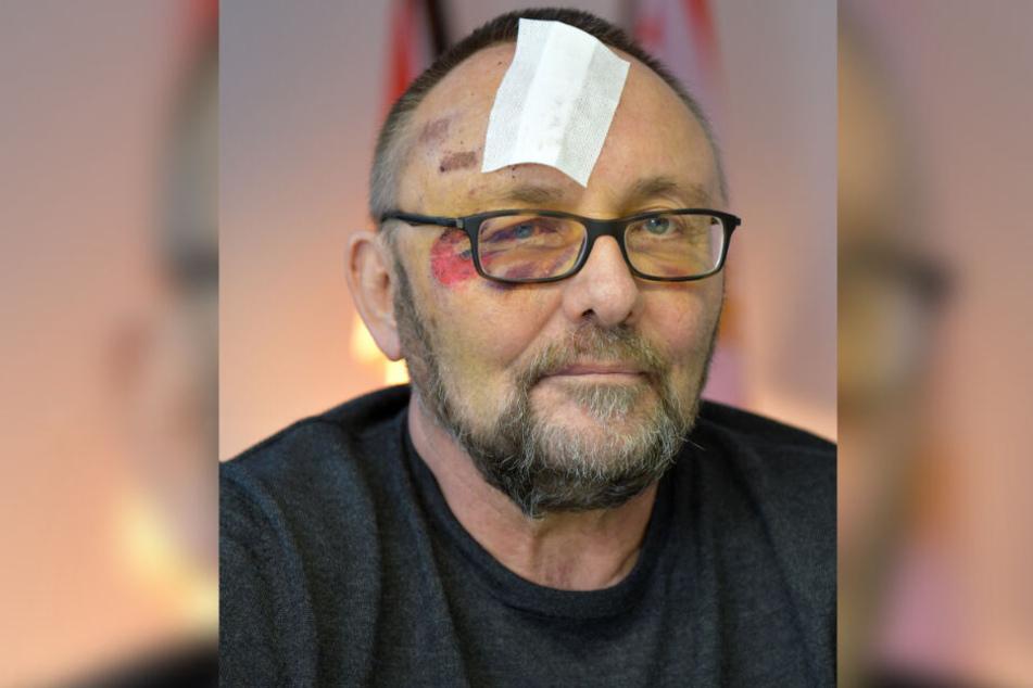 Frank Magnitz wurde am 7. Januar von unbekannten Tätern angegriffen.