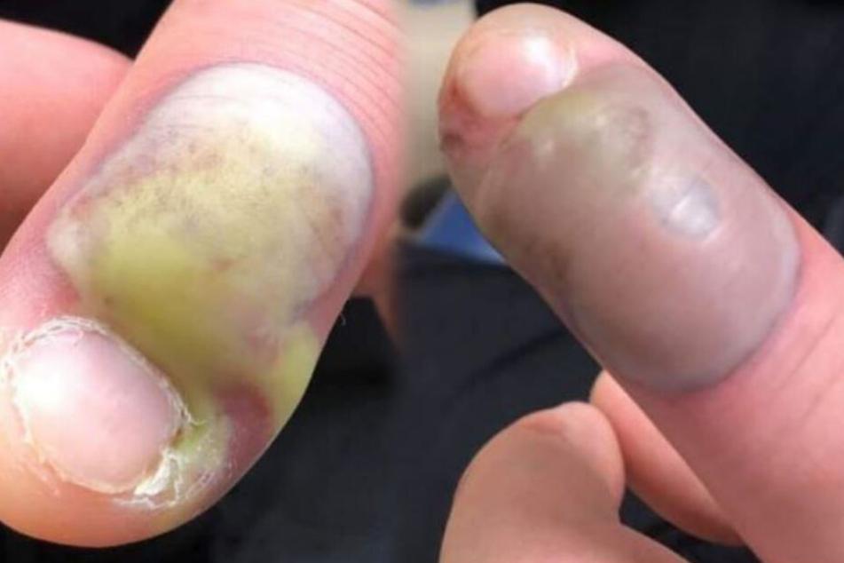 Frau warnt mit Horror-Fotos vor dem Fingernagel kauen