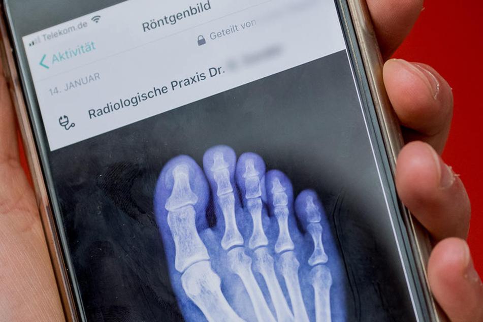 """Ein Handyschirm zeigt ein Röntgenbild eine Fußes, aufgenommen bei der Vorstellung der neuen digitalen Gesundheitsakte """"Vivy""""."""