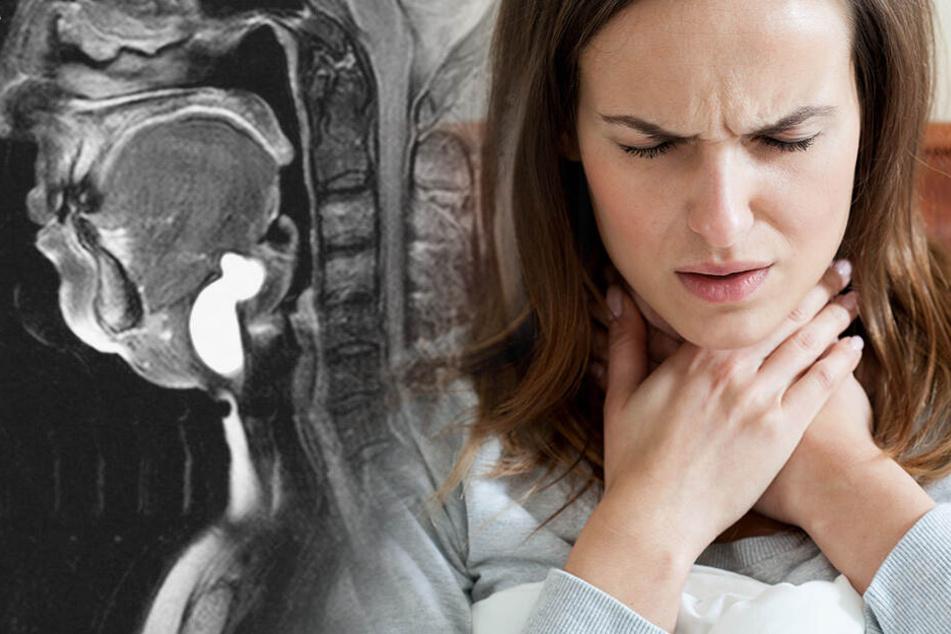 Frau quält sich jahrelang mit geschwollenem Hals herum: Das entdeckten die Ärzte schließlich