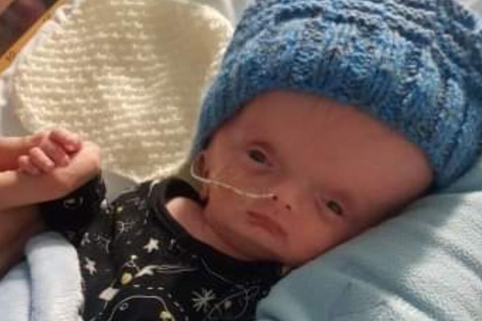 Baby kommt mit fürchterlich geschwollenem Kopf zur Welt
