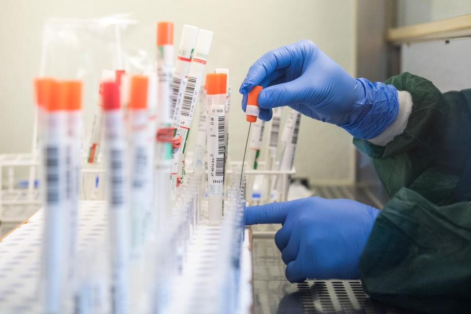 Coronavirus: Neuer Höchstwert an Neuinfektionen in Deutschland