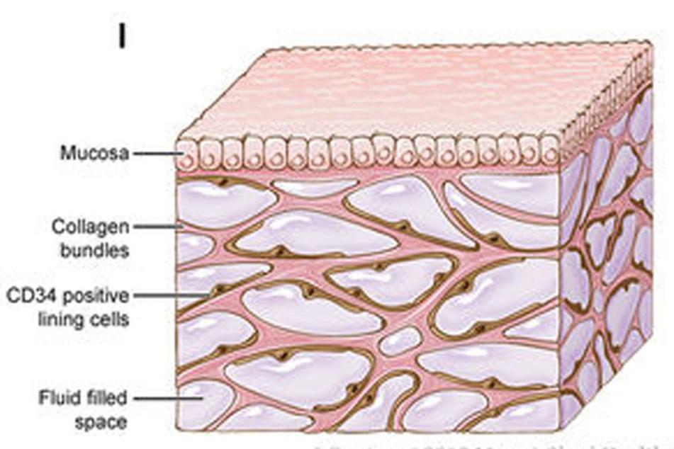 Von wegen nur Bindegewebe: Das neu entdeckte Organ ist mit Hohlräumen durchzogen, die Flüssigkeit transportieren.