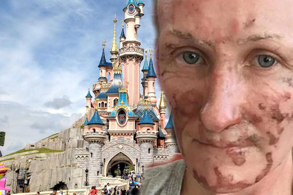 Mutter besucht Disneyland und wird schwer im Gesicht verbrannt