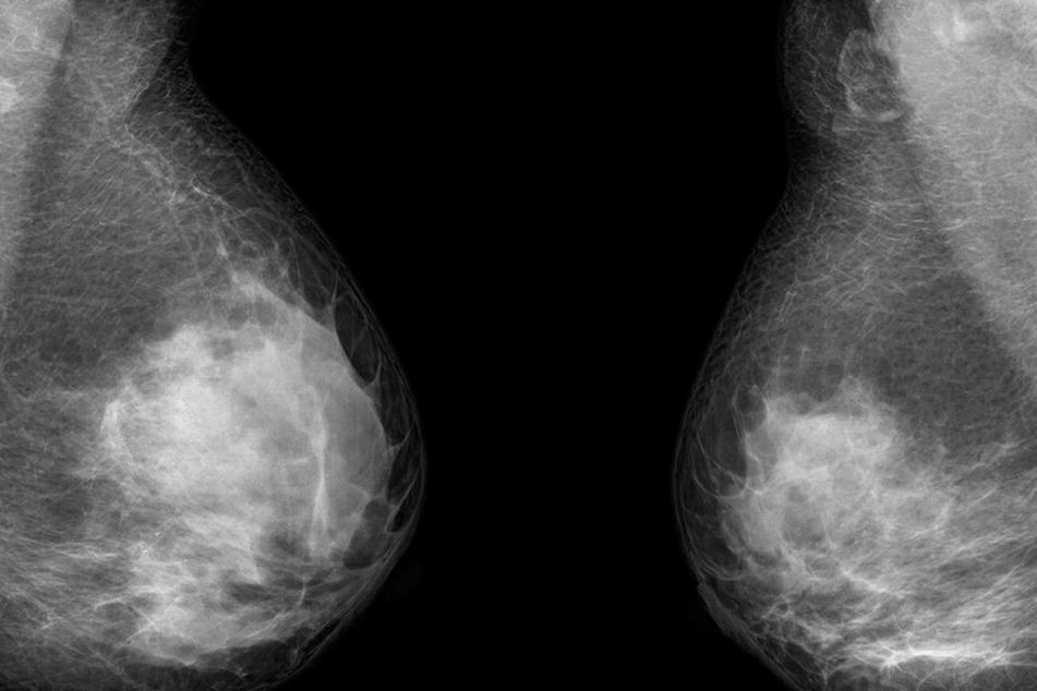 Ein Mammographie-Röntgenbild einer Brustkrebspatientin. Brustkrebs fordert in Deutschland jährlich 17.000 Todesfälle.