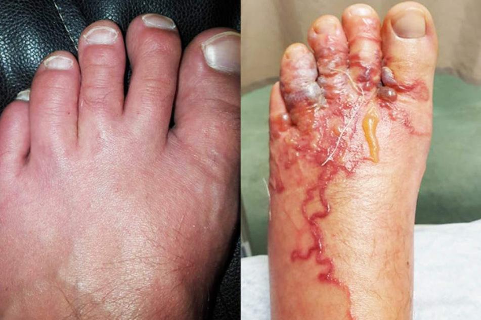 Nach einem Spaziergang am Strand sahen ihre Füße jedoch so aus!