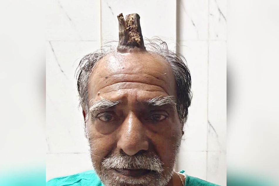 Shyam Lal Yadav (4) aus Indien mit Horn auf dem Kopf.