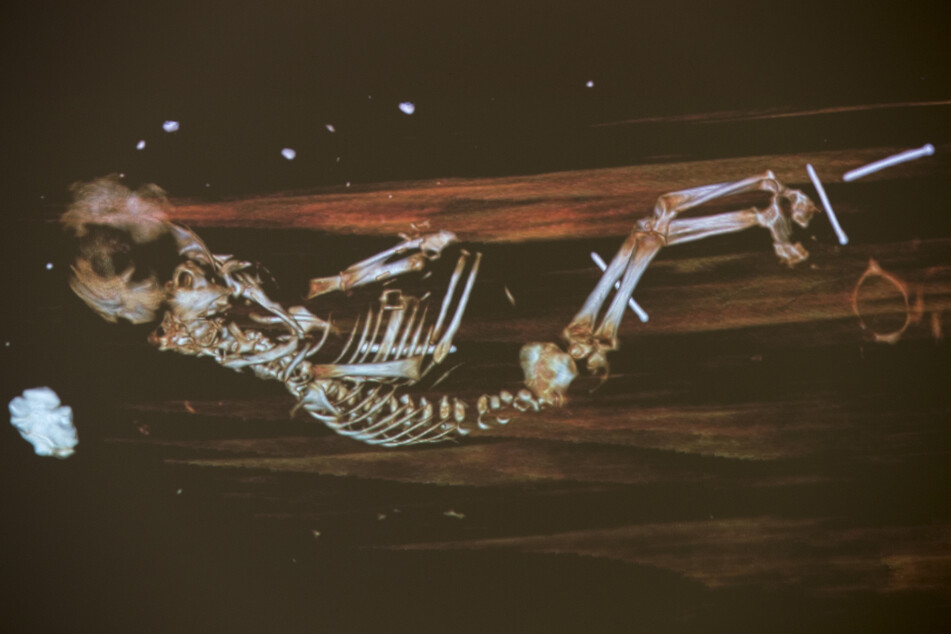 Auf dem Röntgenbild ist der neben der Leiche des Bischofs liegende Fötus.
