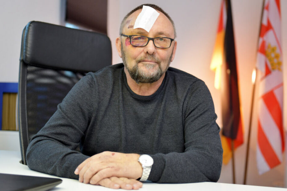 Nach Prügel-Attacke: Staatsanwaltschaft ermittelt gegen AfD-Mann Magnitz