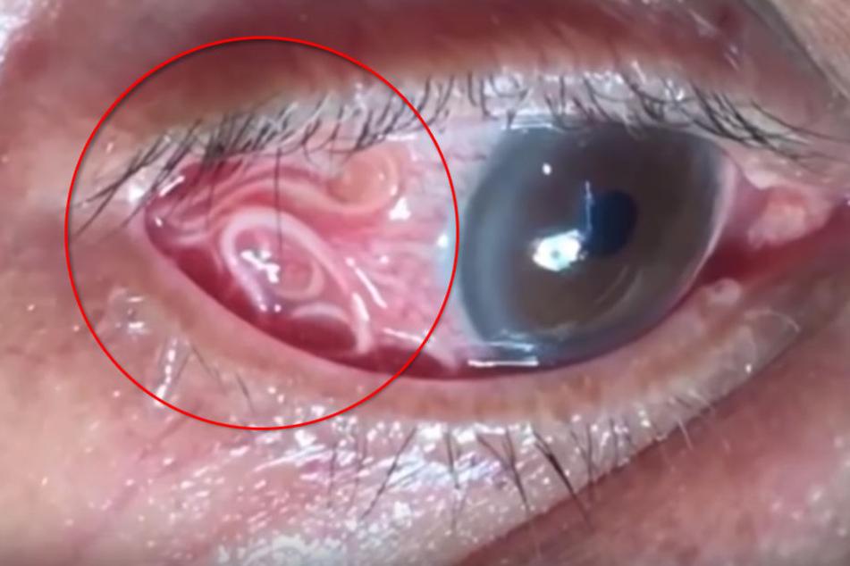 In Indien wurde ein 15 Zentimeter langer Wurm im Auge eines 60-jährigen Mannes entfernt.