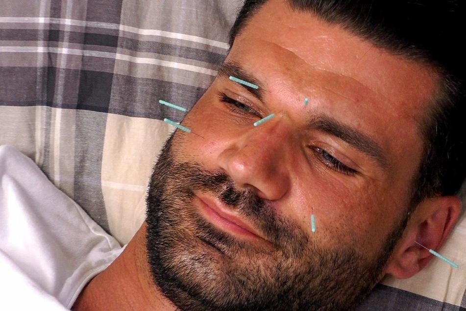 Mike Cees-Monballijn (34) lässt sich zum Stressabbau Akupunktur-Nadeln ins Gesicht stechen...