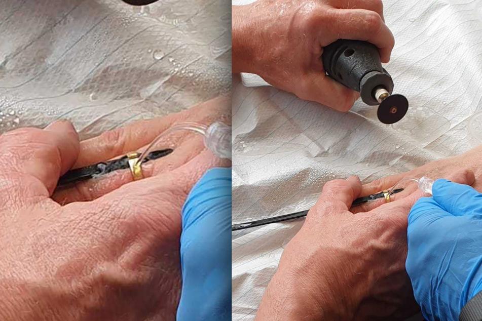 Mit Feinmechanischem Werkzeug und einer Infusion zur Kühlung wurde die Frau vom Ring befreit.