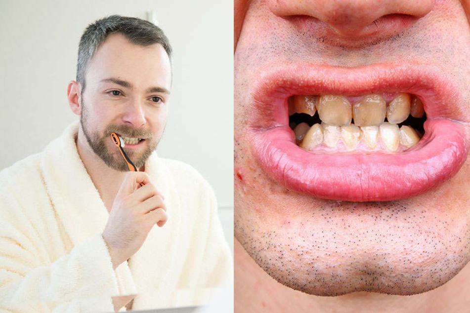 Zu oft putzen macht die Zähne kaputt