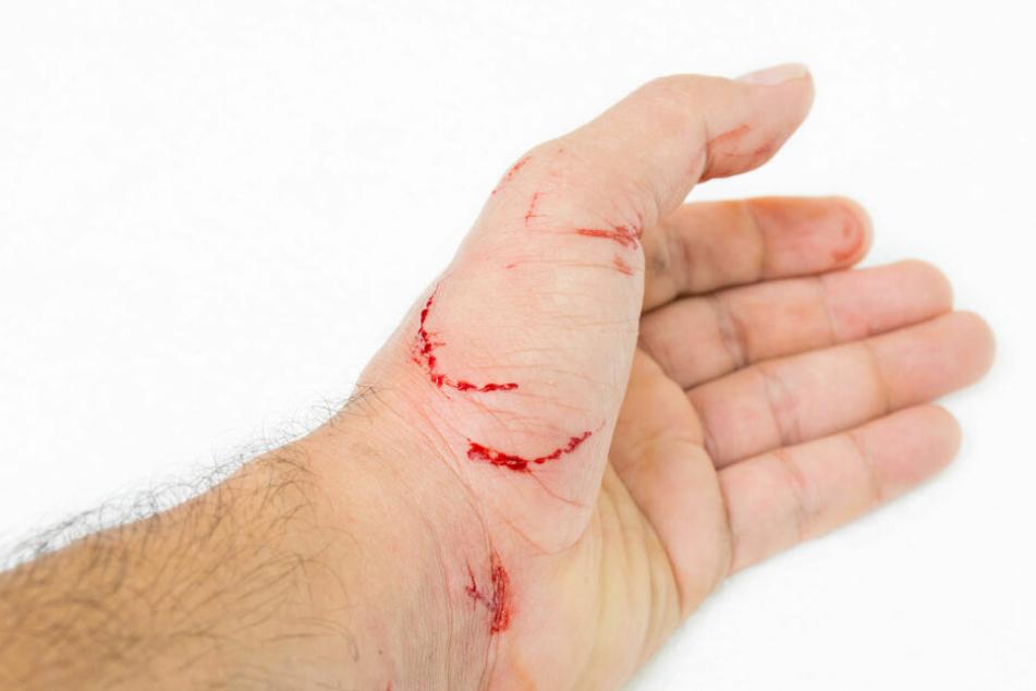 Tiefere Katzenbisse sollte man unbedingt vom Arzt behandeln lassen.
