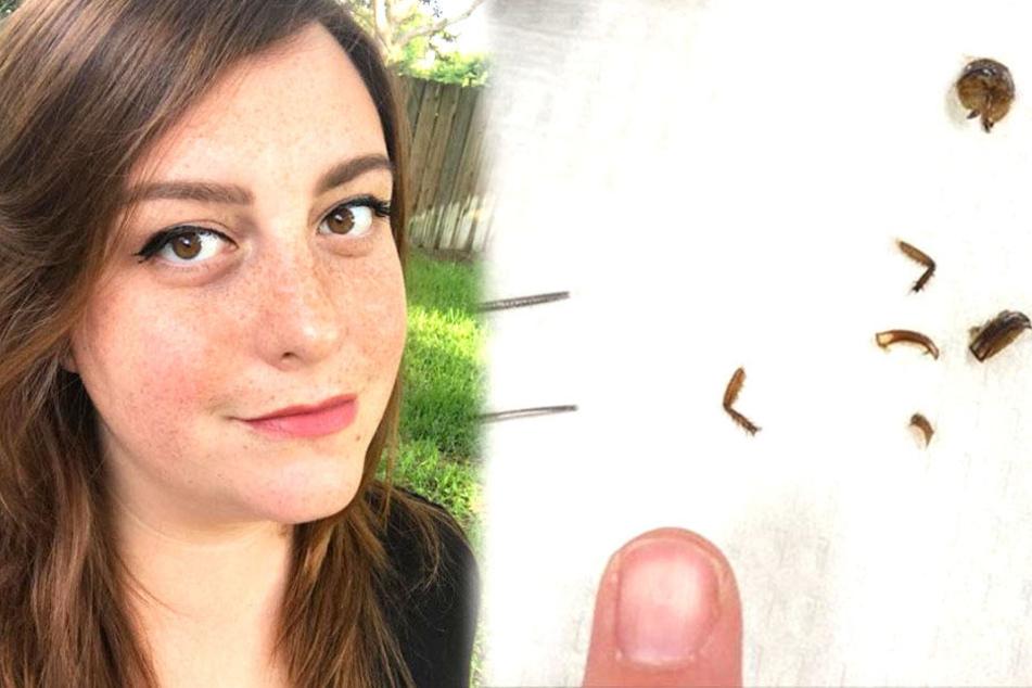 Katie Holley erwachte mit einem Palmetto-Käfer im Gehörgang.