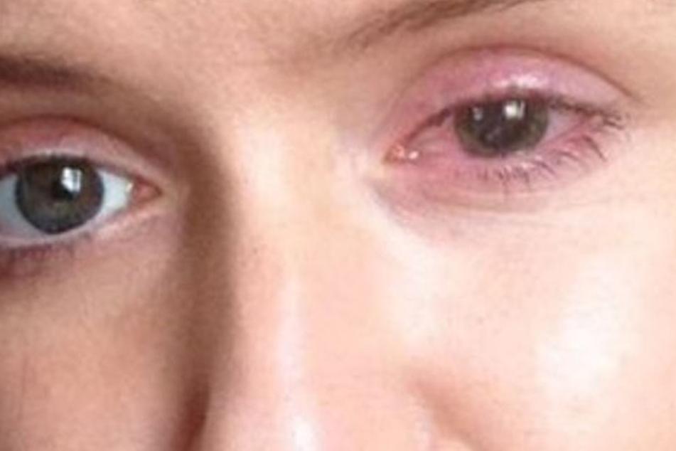 Meabh McHugh-Hill (23) wäre fast erblindet. Sie riss sich ein Stück Hornhaut vom Auge.