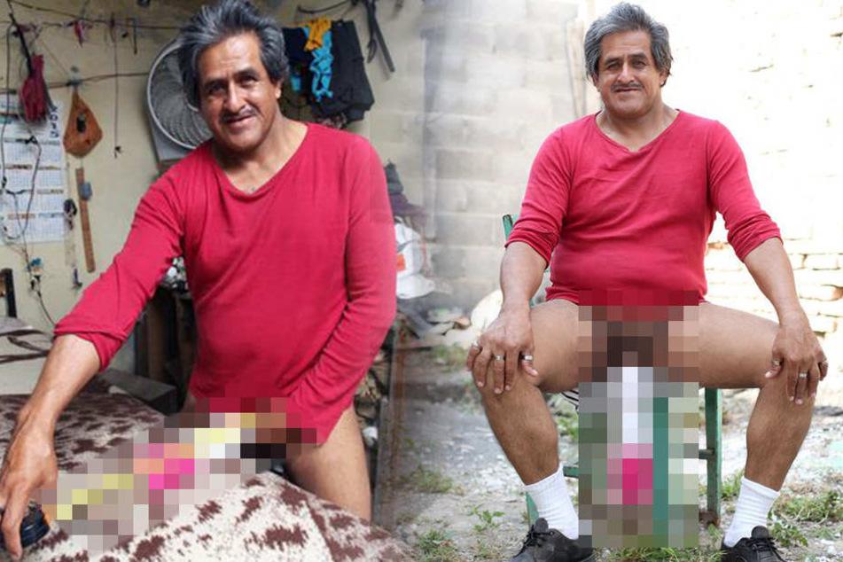 Mann gilt als behindert, weil sein Penis unglaublich lang ist