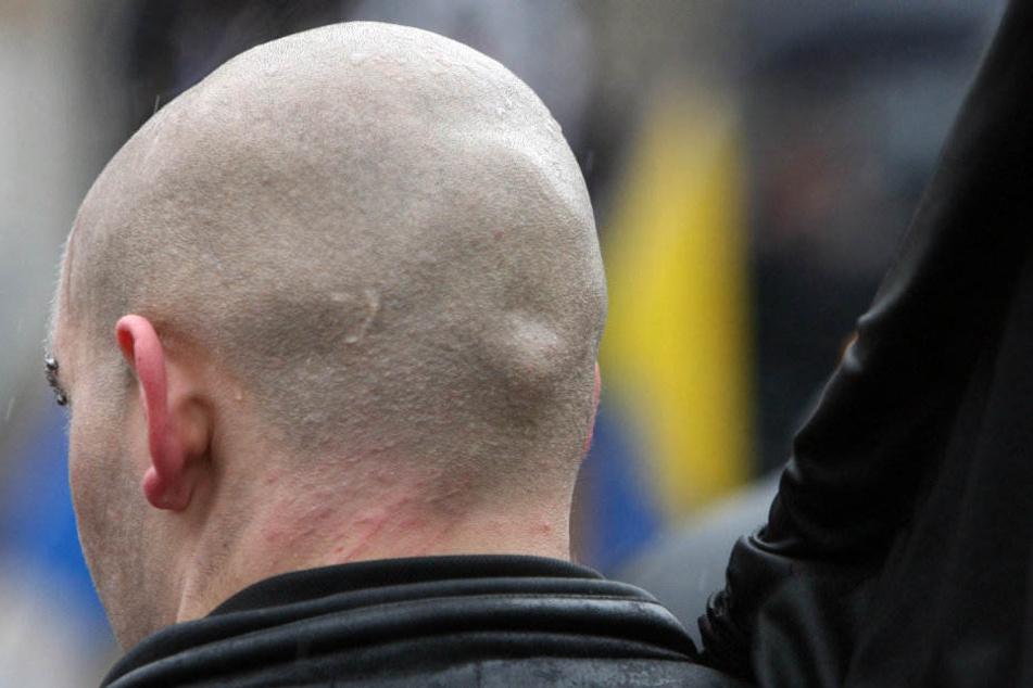 Der Mann soll eine Glatze haben. (Symbolbild)