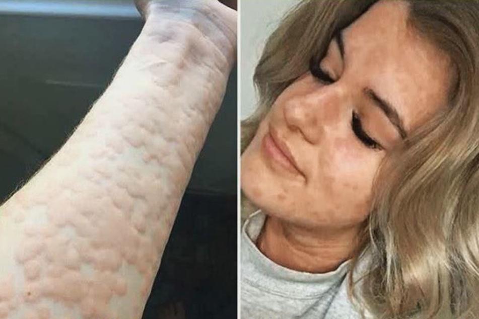 Arianna Kent leidet unter kalter Urtikaria. Wenn ihr Körper in Kontakt mit Kälte kommt, reagiert ihre Haut mir roten, juckenden Flecken.
