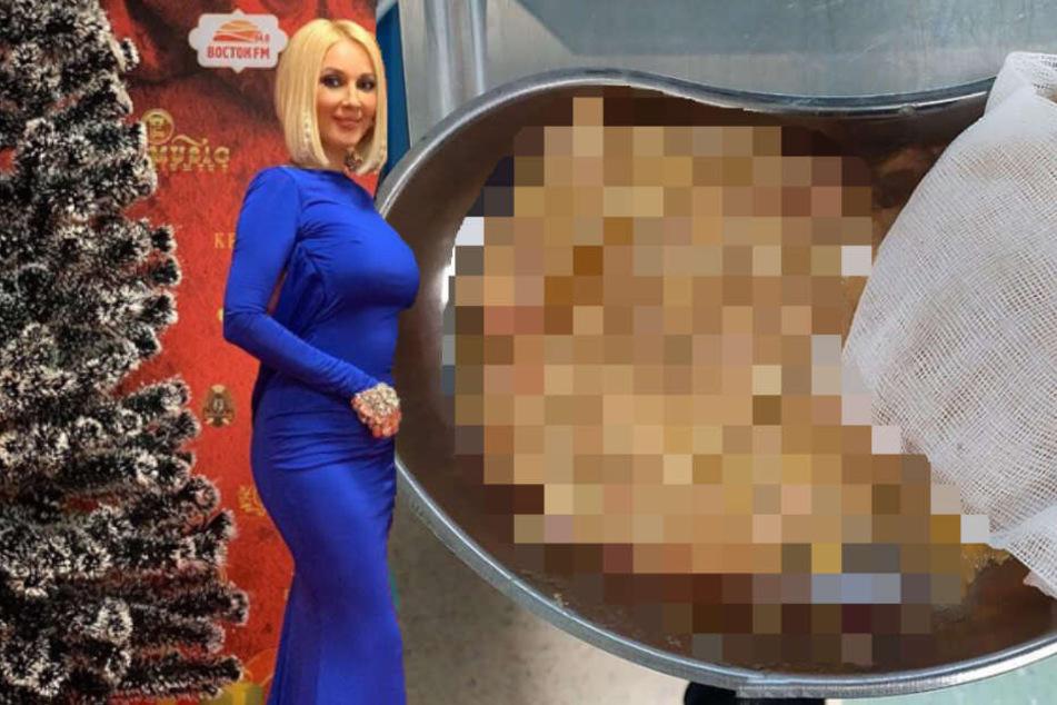 TV-Moderatorin erlebt Albtraum, als ihr Implantat platzt