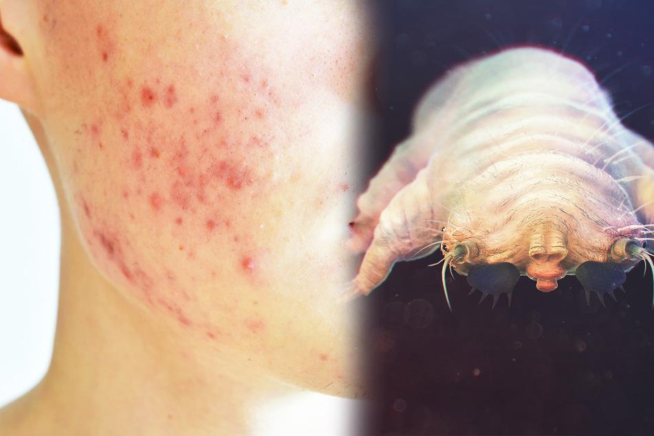 95 Prozent der Deutschen betroffen: Kleine Spinnen leben in unseren Gesichtern!