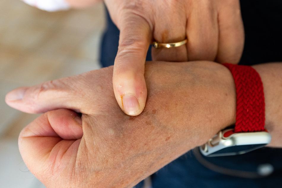 Juliane von der Ohe (60) zeigt auf einen ihrer Chips in der Hand. Zwei Reiskorn große Implantate liegen knapp unter der Haut jeder Hand zwischen Daumen und Zeigefinger.