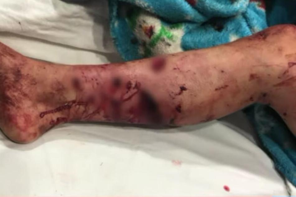 Das Bein des Mädchens ist mit Wunden übersät.