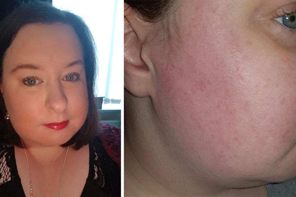Stacey Parker (31) leidet an allergischen Reaktionen und Schwellungen.