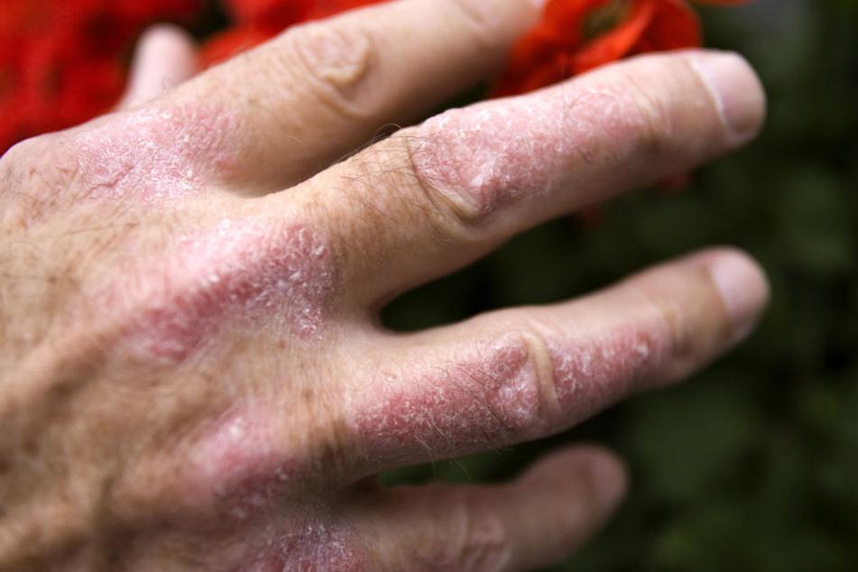 Rote Flecken auf der Haut, die sich mit der Zeit verdicken, und darauf helle Schuppen: Häufige Symptome bei Schuppenflechte.