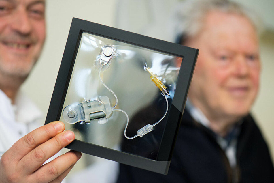 Jürgen Schmidt wurde ein Hörgerät unter die Haut transplantiert.