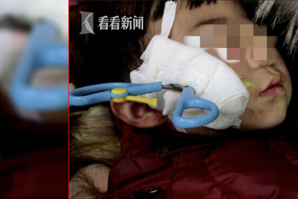 Das arme Kind! Die Verletzung tut schon beim Hinsehen weh!