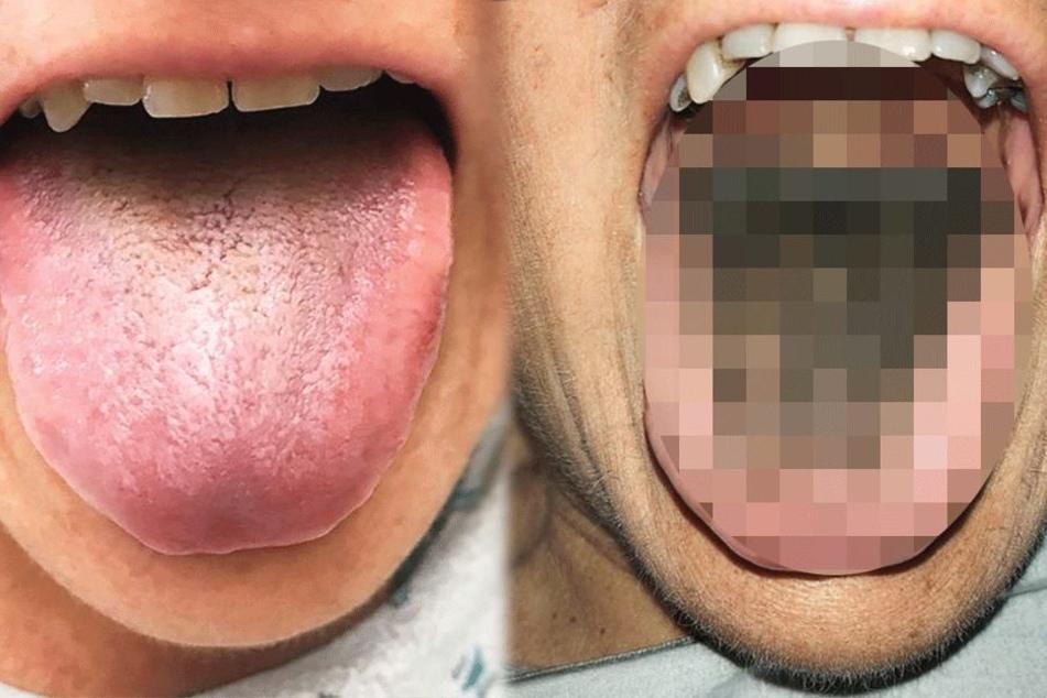 Ekel-Alarm: Frau wachsen nach Autounfall Haare auf der Zunge