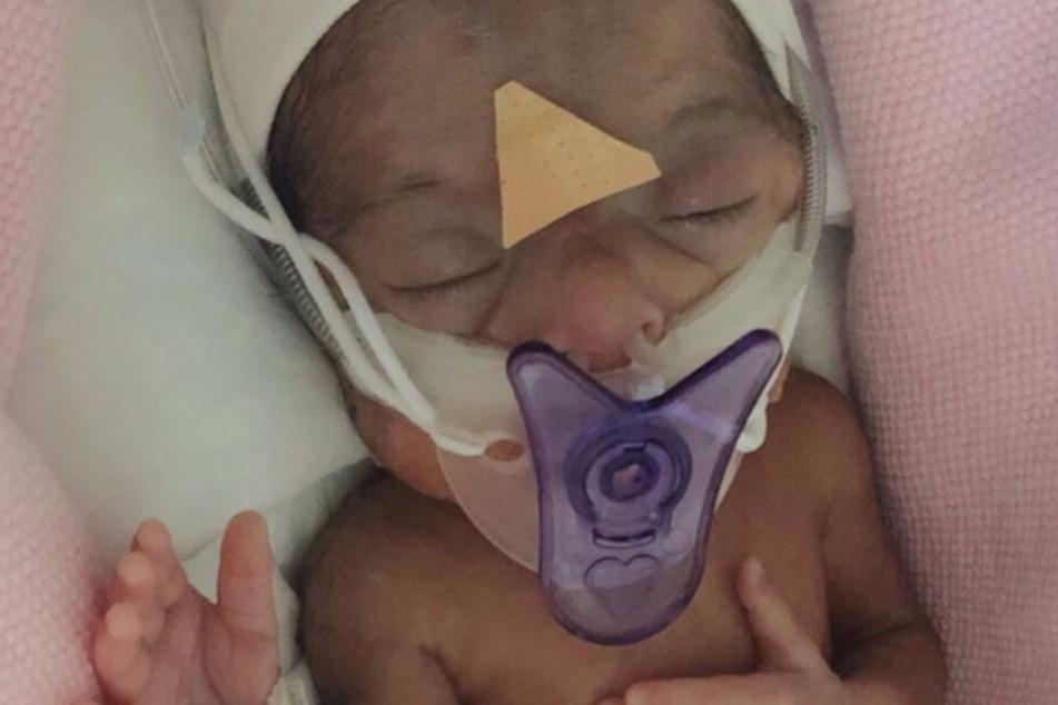 Privatklinik rückt Baby erst raus, wenn enorme Rechnung bezahlt wird