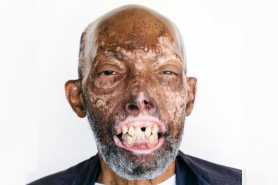 Vor der Transplantation: Ein Unfall hatte das Gesicht von Robert Chelsea fürchterlich entstellt.