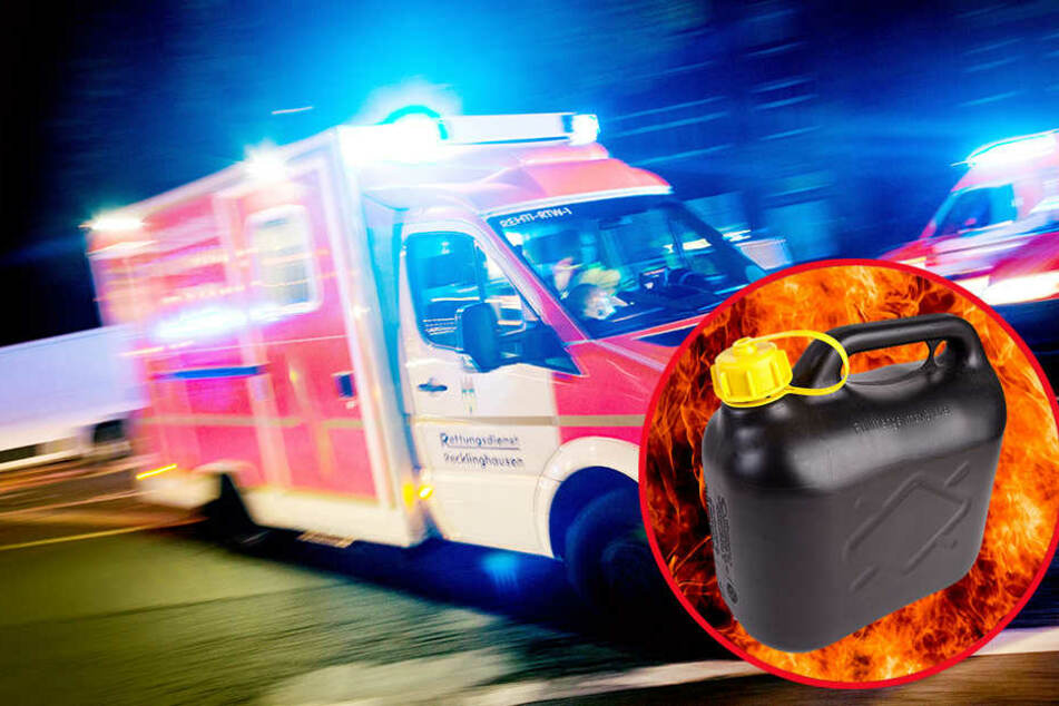 Mit schweren Brandverletzungen musste ein Junge am Sonntag ins Krankenhaus geflogen werden.