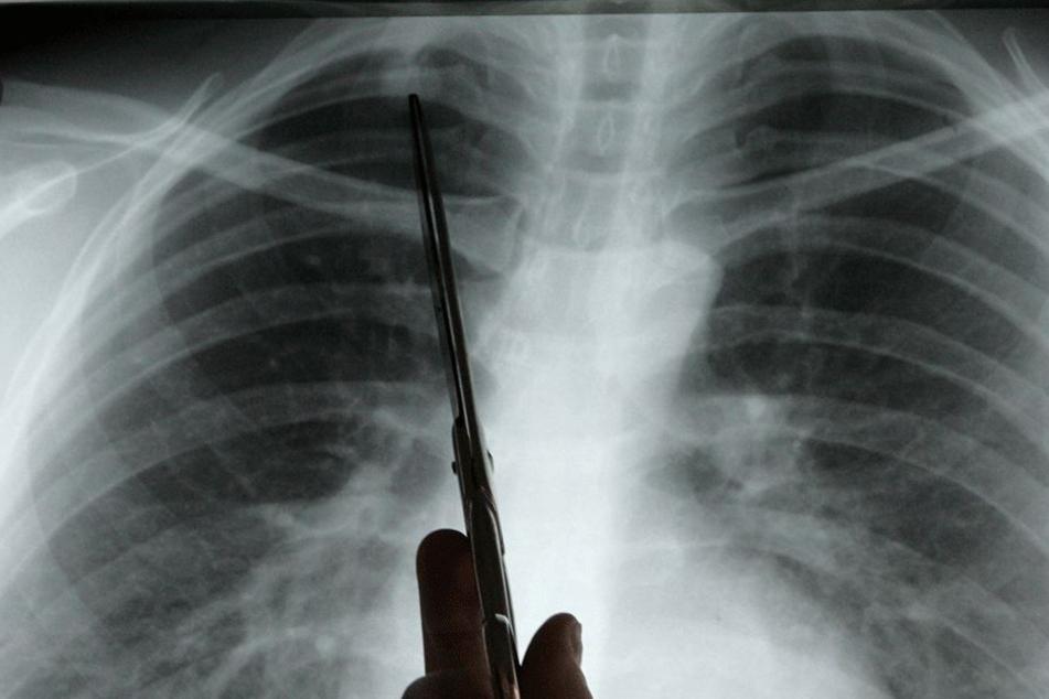 Zuviel Vitamin B kann Lungenkrebs fördern!