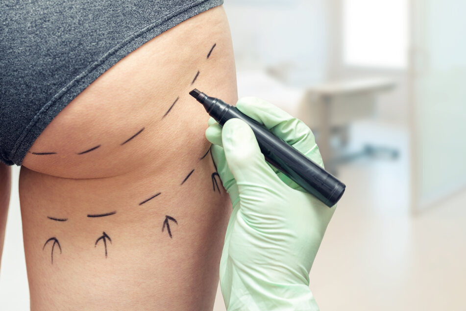 "Zwei Todesopfer nach ""Brazilian Butt""-Operationen: Arzt angeklagt!"