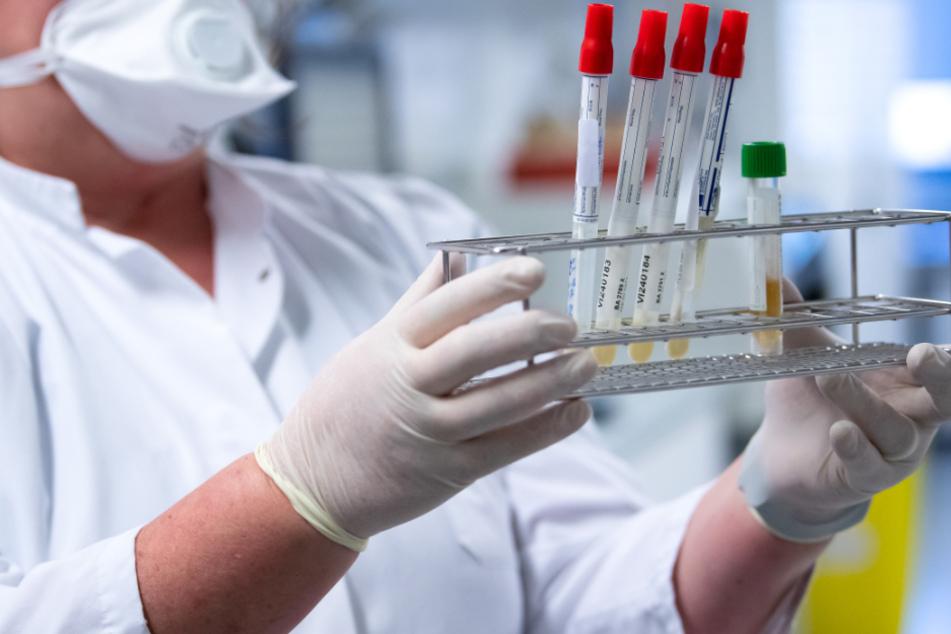 In einem Labor wird ein Coronavirus-Test durchgeführt.